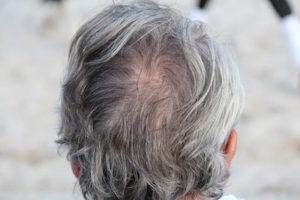 baldness research