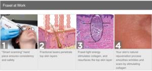 Fraxel Laser Hair Loss Treatment