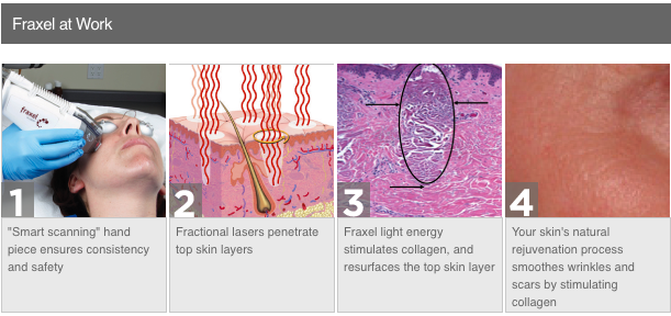 Fraxel Laser Resurfacing Treatment to be Tested on Hair Loss | London