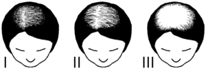 Ludwig Scale for Female Pattern Baldness