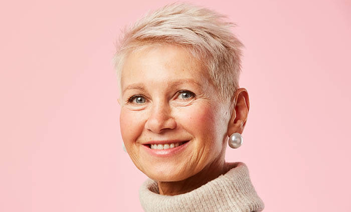 Frontal Fibrosing Alopecia in Women