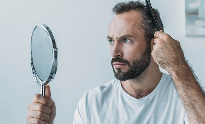 impact of hair loss on men